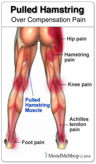 leg over compensation pain and hamstring injury