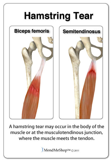 hamstring muscle tear may need surgery to repair the damage
