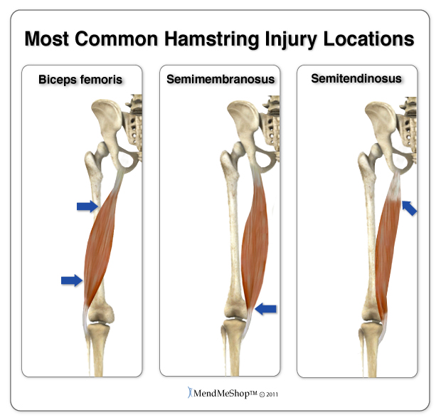common injury areas hamstring