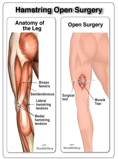 open hamstring surgery repair for leg pain