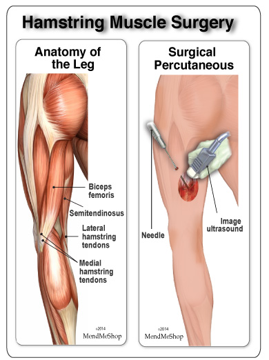 open muscle surgery repair on hamstring muscle