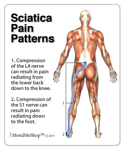 Pinching of a sciatic nerve can cause lower back and hip pain and reach down the leg to the foot.