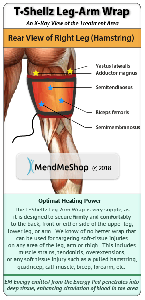 leg T•Shellz Wrap<sup>®</sup> x-ray back